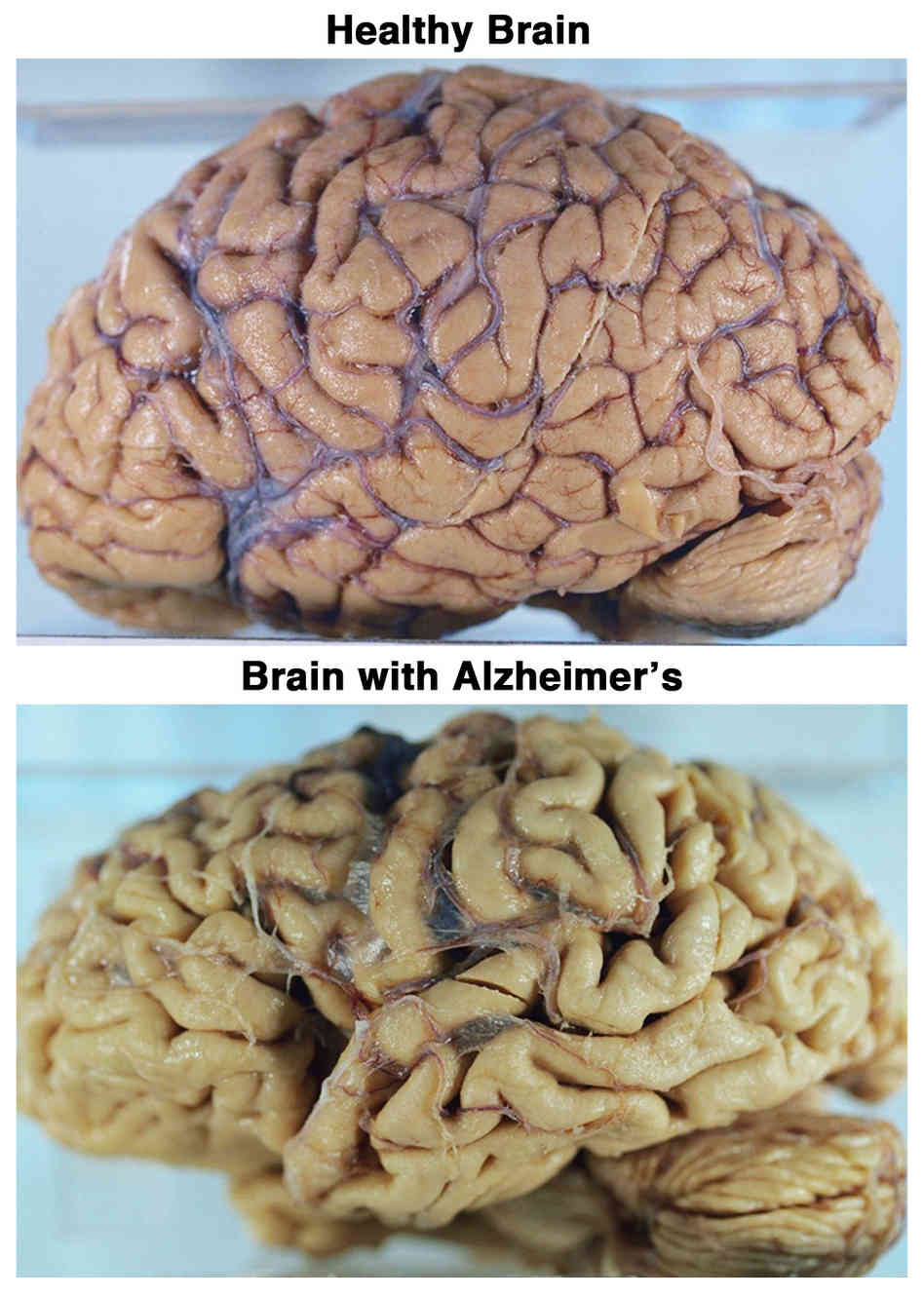 Healthy Brain and Brain with Alzheimer's