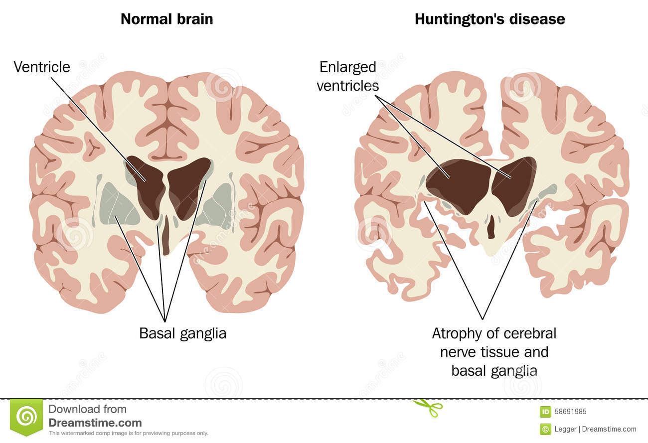 disease-normal-huntington