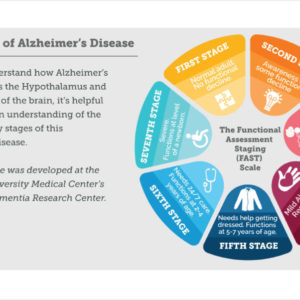 The REAL Seven Stages of Alzheimer's